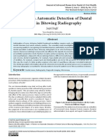A Review on Automatic Detection of Dental Caries in Bitewing Radiography