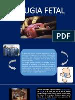 Cirugia Fetal