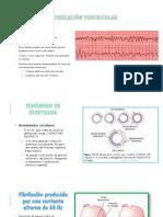Fibrilación Ventricular Ppt