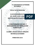 Monografía de Fibrilación Auricular