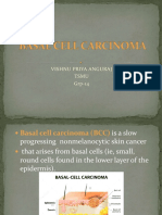 basalcellcarcinoma-161119170908