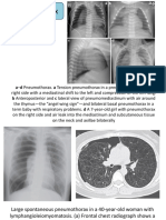 radiologi thorax
