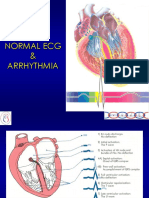 ECG_Arrhythmia2006.ppt