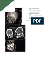 Ekspertise Radiologi Metastase Paru.docx