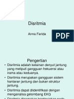 DISRITMIA II (ANNA).ppt