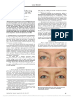 Chronic Eyelid Edema Following Periocular Hyaluronic Acid Filler Treatment