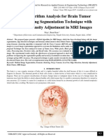 Hybrid Algorithm Analysis for Brain Tumor Detection using Segmentation Technique with Efficient Intensity Adjustment in MRI Images