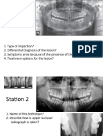 Oral Surgery - Questions