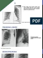 374500233 Radiologi Infeksi Pada Paru