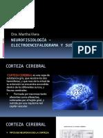 9. Electroencefalograma y Sueño Dra Martha Viera