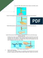 Perhatikan Penggunaan Palu Dan Dollly Dalam Perbaikan Body Kendaraan Dicontohkan Seperti Gambar Berikut