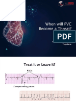 4. When will PVC for WS.pdf