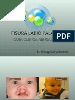 23 Fisura Labio-palatina.ppt