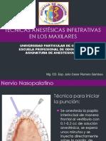 Tecnicas Infiltrativas.docx