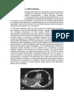 Derrame Pleural por tomografía