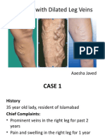 Dilated Leg Veins