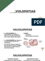 7 Valvulopatias y Tumores Cardiacos