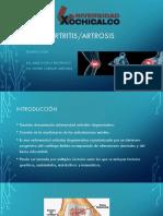 Osteo Artitris