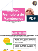 RPM Pal J