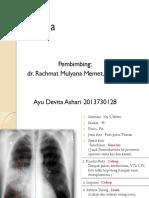 Ekspertise Pneumonia