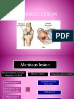 Penatalaksanaan Fisioterapi Pada Knee joint