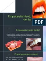 Empaquetamiento Dental