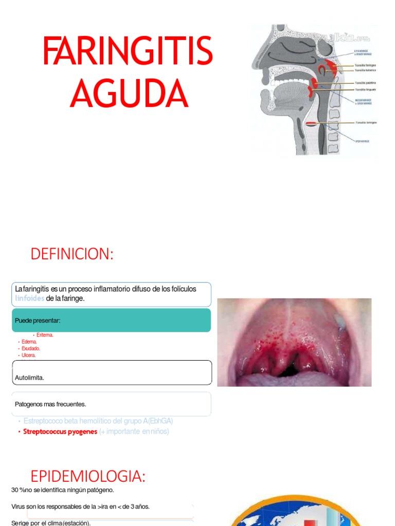 Faringitis cronica seca atrofica