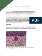 Carcinoma de Cuello Uterino