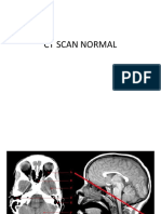 Ct Scan Normal