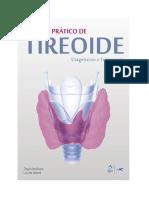 Tireoide diagnostico e tratamento