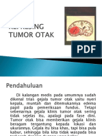 refreshing Tumor Otak