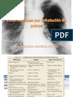 enfermedadesporinhalacindepolvos-090405122759-phpapp01.pdf