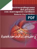 El electrocardiograma del paciente con marcapasos cardiaco.pdf