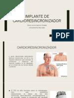 cardioresincroniza
