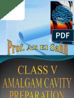Class v Amalgam Cavity