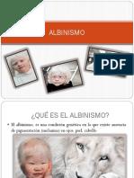 Albinismo // presentacion informativa