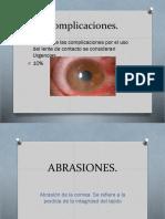 ABRASIONES-1_497.pptx