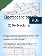 Electrocardiografía 12 Derivaciones