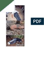 posiciones cadavericas