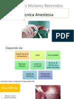 Técnica Anestesia.pptx