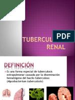 78604074-Tuberculosis-Renal-1.pptx