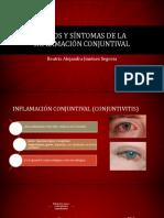 Signos y Síntomas de La Inflamación Conjuntival