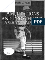 Amputation and Prothe