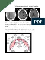 Membaca CT Scan Hematoma Intrakranial