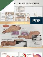 Bases Celulares de Gastritis