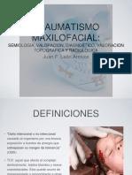 Trauma Maxilofacial2ppt(1)