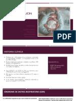 Caso Clinico Ucin (2)