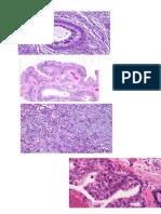 Print PA Neoplasma