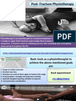 Post Fracture Stiffness Physiotherapy in Dwarka