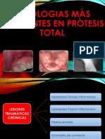 Patologias màs Frecuentes en Pròtesis Total